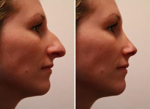 rhinoplasty in jerba, clinic in jerba, polyclinic jerba, clinic in tunisie, polyclinic in tunisia