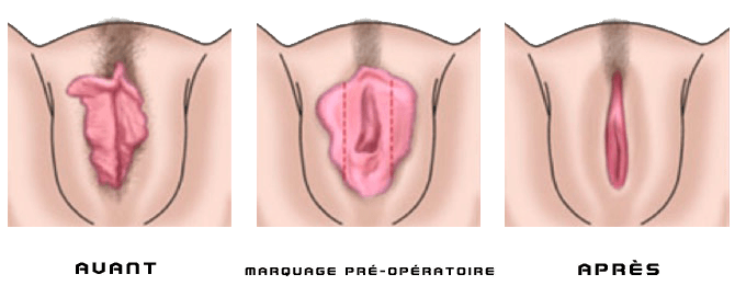 La masturbation peut augmenter penis